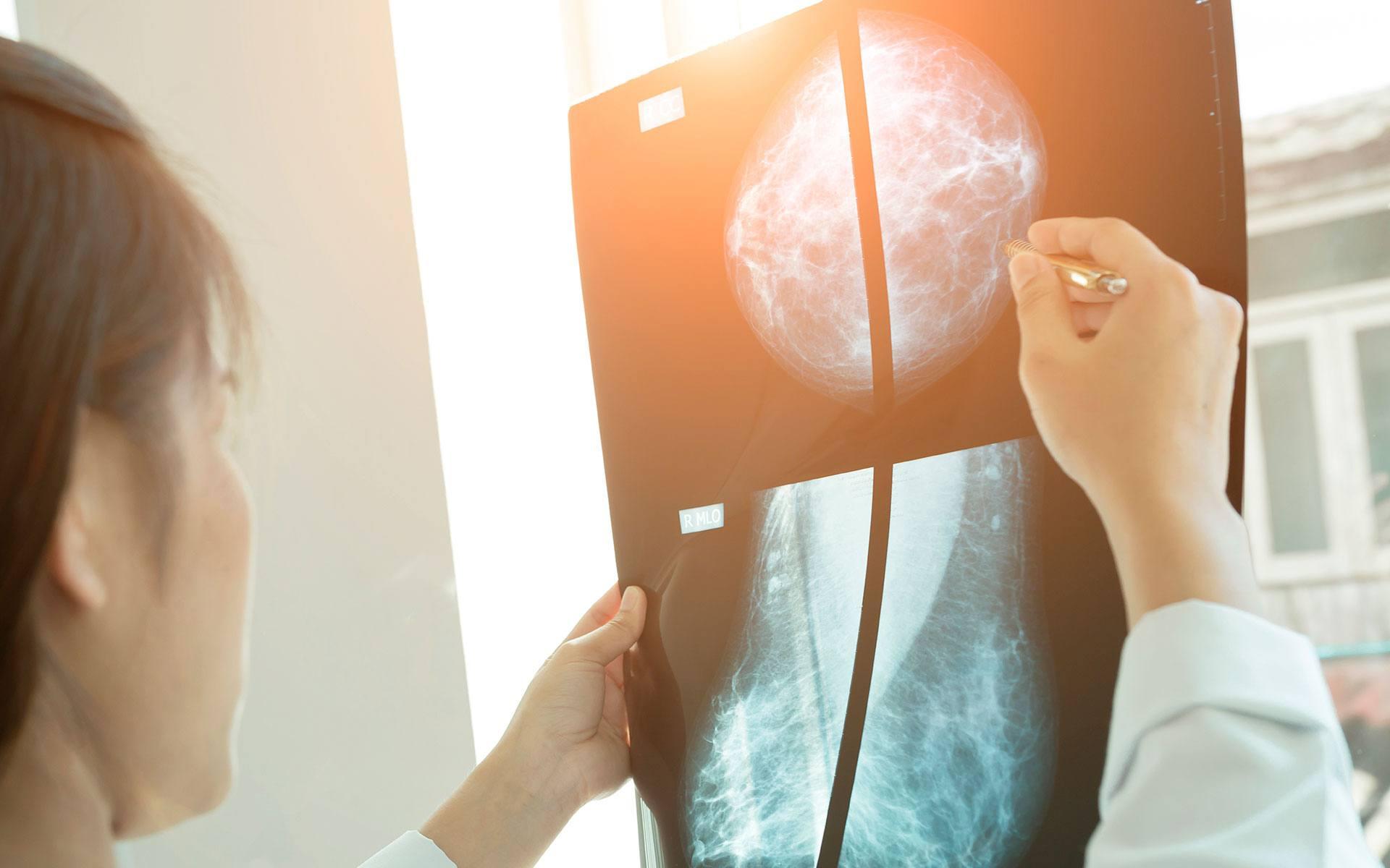 mamografía en Almería